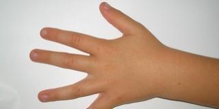 Korlát közé szorult be egy kisgyermek ujja Pécsett